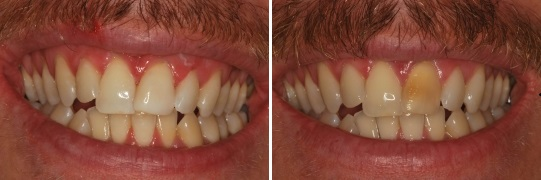 this 32 year old man had a dark front tooth as had an accident when he was little  he was