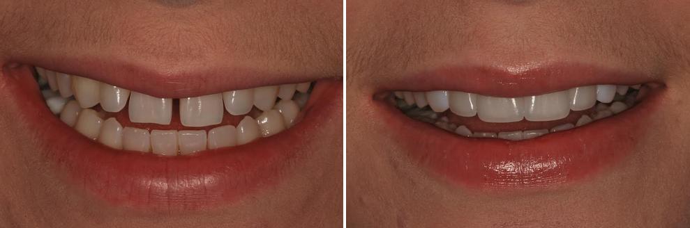 הלבנה וסגירת רווח של שיניים עליונות. שם המטופלת: טל