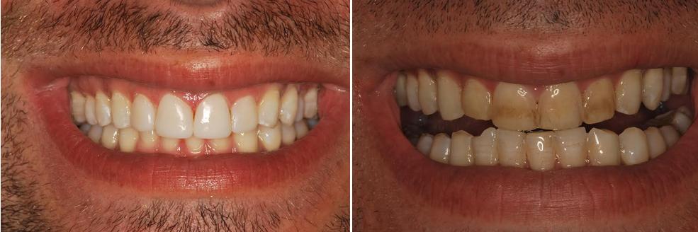 גבר שביצע הלבנת שיניים קדמיות מוכתמות תוך שעה