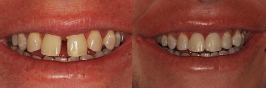 שיקום הפה, יישור שיניים וסגירת ריווח בלסת עליונה תוך 15 שבועות. מטופל:יוסי