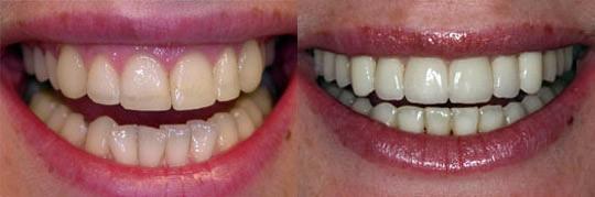 שיניים נוטות הצידה ועקומות בלסת תחתונה. יישור מהיר למטופלת : ענבל