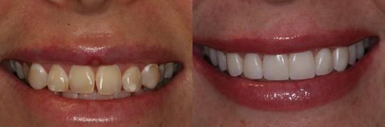 הלבנה שיניים בשעה בלבד לאישה בלסת עליונה והסרת כתמים בשיניים קדמיות