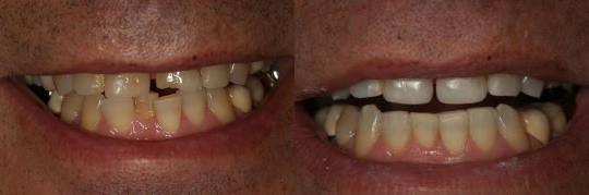 ביצוע השלמה של שן קדמית שבורה בשיטת ציפוי מבנה השן. מטופלת: לורן