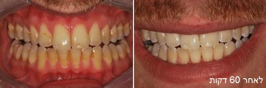 הלבנת שיניים תוך 60 דקות שם המטופל: ג'וש