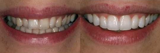 המחשה של הענקת מראה גוון לבן יותר לשיניים תוך שעה בלבד