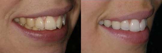 יישור שיניים בשיטת Invisalign צד שמאל של לסת עליונה אצל אישה