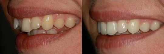 יישור שיניים שקוף בשיטת אינויזליין בצד ימין של אישה+ הלבנה