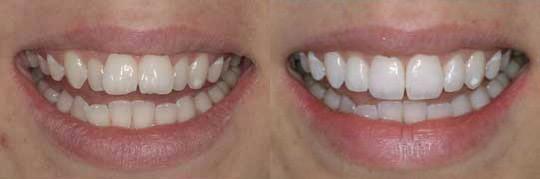 ציפויים בשיניים למטופלת בשם בריג'יט ליישור השיניים והלבנתן