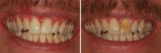הלבנת שיניים קדמיות לגבר בן 32 בלסת העליונה