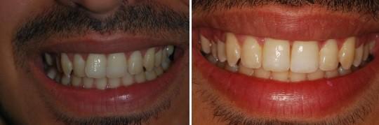 יישור שיניים מהיר של שתי לסתות תוך 15 שבועות. שם   המטופל: רוני