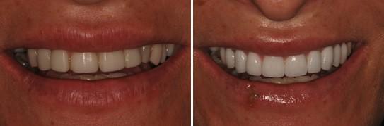 תמונה פרונטלית של ביצוע שיקום על ידי ציפויים ומראה גוון בהיר יותר לשן
