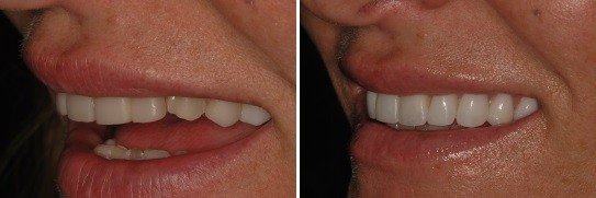 תמונה צדדית של ביצוע השלמת שן עליונה למראה אסתטי יותר