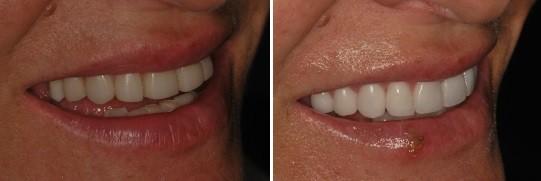תמונה מהצד השמאלי של ביצוע השלמת שן עליונה למראה אסתטי