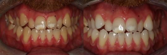 הלבנה של כל השיניים בפה והפחתת כתמים קבועים בשתי השיניים הקדמיות