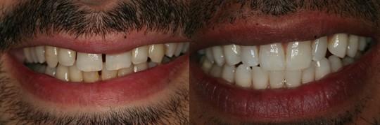 צילום השיניים לאחר טיפול של ביצוע ציפויים בשיניים בלסת עליונה. מטופל בשם ג'ורג'