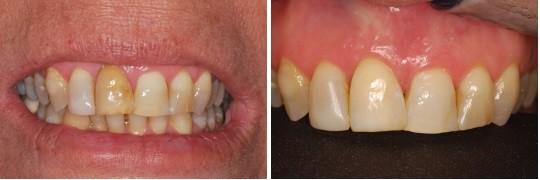 שן קדמית של מטופל בשם עמי והלבנתה לגוון של כל שיני הלסת העליונה
