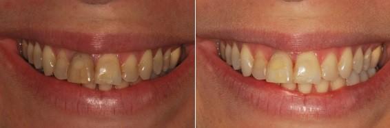 הורדת כהויות בכל שיני הלסת העליונה והענקת מראה לבן יותר