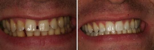 צמצום רווח בשיניים קדמיות של לסת עליונה על ידי יישור שיניים Invisalign  לגבר