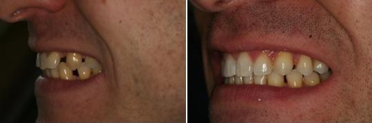 תמונת פרופיל לפני ואחרי של יישור באמצעות קשתיות Invisalign תוך 16 שבועות
