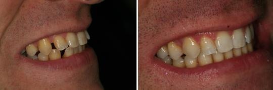 הקטנת ריווח של לסת עליונה באמצעות יישור שיניים עם אינוויזליין