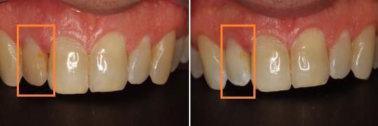 הלבנת שן שחורה בודדת לסת עליונה בצד שמאל