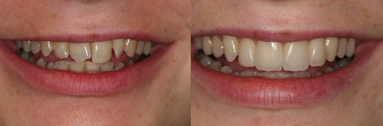 לפני ואחרי של יישור+ ציפויי שיניים לפרופורציות נכונות. מטופלת : עינת.
