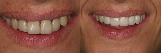 הענקת פרופורציה לשיניים קדמיות בלסת עליונה ומראה שיניים ישר. מטופלת: מיכל