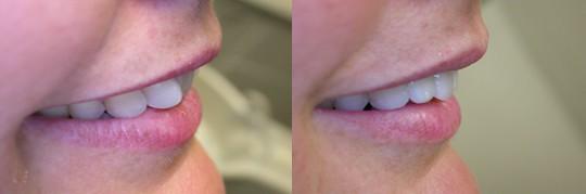תמונת פרופיל של שן עקומה שהוכנסה פנימה . טיפול תוך שעה!