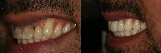 ביצוע טיפול אינויזליין למטופל בלסת עליונה עם שיניים מוכתמות
