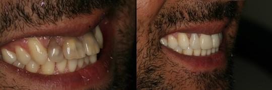 לפני / אחרי טיפול אינויזליין לשיניים מוכתמות במיוחד בלסת העליונה