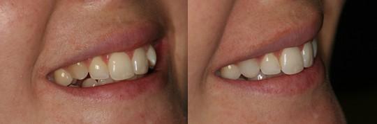 תמונה פרונטלית מצד ימין של אישה שביצעה יישור שיניים inman לשיניים הקדמיות