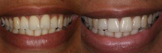 תמונת לפני טיפול ואחרי טיפול יישור שיניים בשיטת אינמן לבחורה בשיניים הקדמיות לסת עליונה