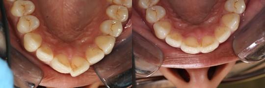 ביצוע יישור שיניים בשיטת INMAN בלסת עליונה והכנסת שן קדמית בולטת