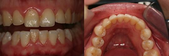 תמונה לפני ואחרי של יישור אינמן בלסת  תחתונה של שיניים נוטות אחורה מעט