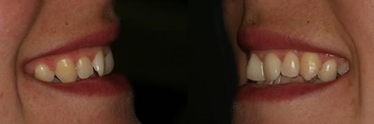 תמונת פרופיל של אישה לפני ואחרי טיפול עם מיישר אינמן לבליטה קלה בשיניים קדמיות