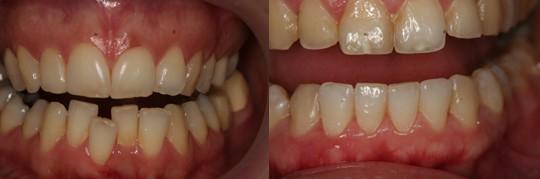 מיישר אינמן בלסת תחתונה ועליונה לשיניים הקדמיות - יישור ב-15 שבועות