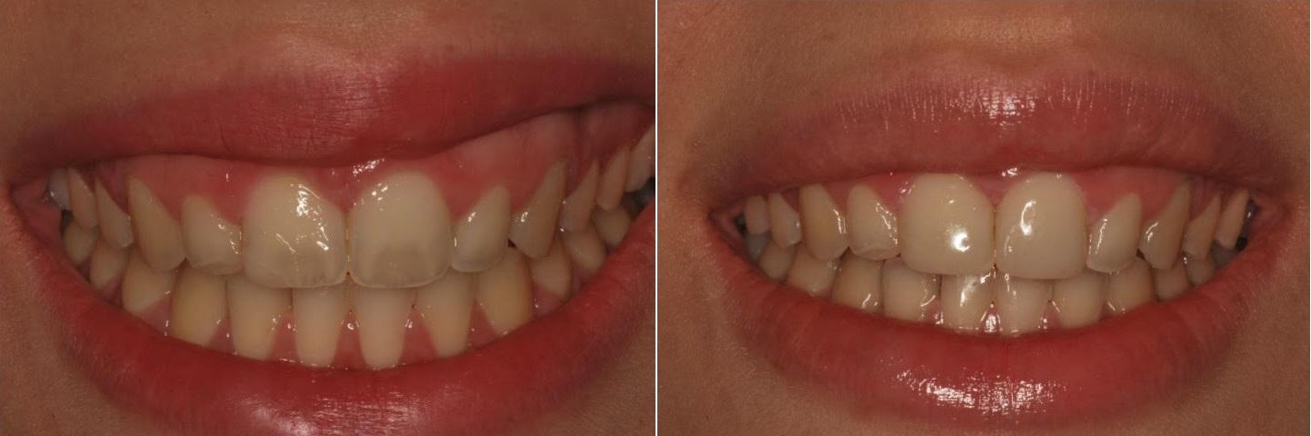 כתמים בשתי שיניים קדמיות והסרתן על ידי ביצוע הלבנה אצל רופא מומחה