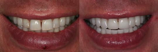 סגירת ריווח קל בשיניים קדמיות והלבנה על ידי ציפויים לבנים