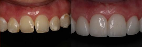 השלמת ריווח וביצוע פרופורציות נכונות של שיניים בלסת עליונה אצל מטופלת בשנות ה-30