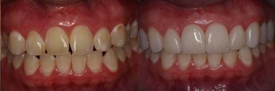 ציפויי שיניים במראה של 2 לסתות. הציפויים בשיניים עליונות לביצוע פרופורציות