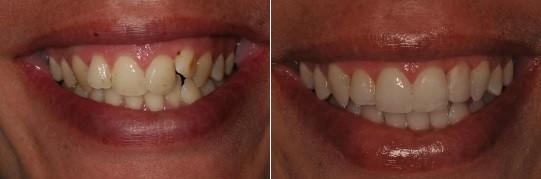 שיקום אסתטי לפה: שן בולטת בלסת עליונה שהוכנסה פנימה והורדת כתמים. מטופלת: נירה