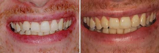 לפני טיפול ואחרי יישור שיניים בשיטת אינמן בשתי הלסתות אצל גבר