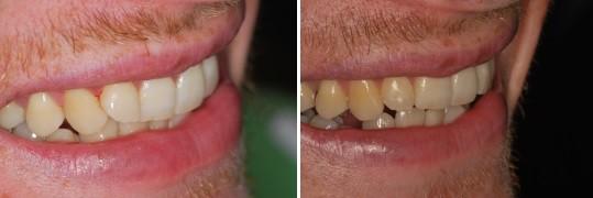 מבט בזווית ימנית על טיפול יישור שיניים INMAN לשיניים קדמיות עקומות מעט
