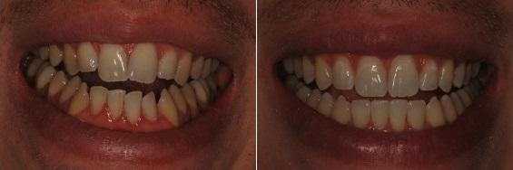 יישור של שיניים טבעיות בלסת עליונה ותחתונה. שם המטופלת: חן