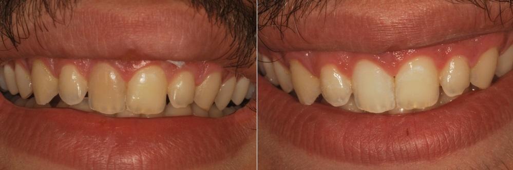 הלבנת 5 שיניים כהות ומוכתמות בלסת עליונה אצל גבר