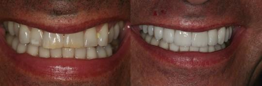 שתי שיניים קדמיות מוכתמות והלבנתן של כל השיניים - לובן בוהק
