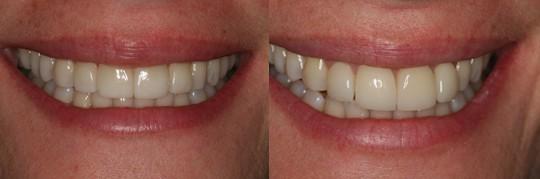 לפני הלבנת שיניים ואחרי הלבנת שיניים בפה של בחורה