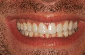 אחרי הלבנת שיניים