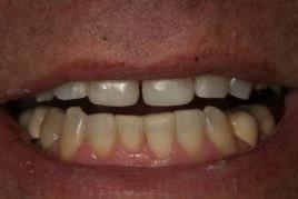 אחרי הלבנת שיניים: ביצוע הלבנה והשלמה של שן קדמית שבורה בשיטת ציפוי מבנה השן
