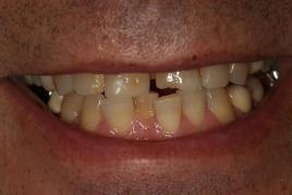 לפני הלבנת שיניים: ביצוע השלמה של שן קדמית שבורה בשיטת ציפוי מבנה השן